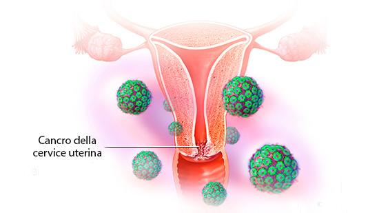 Cancro della cervice uterina - Centro HPV - Casa di Cura Villa Mafalda Roma