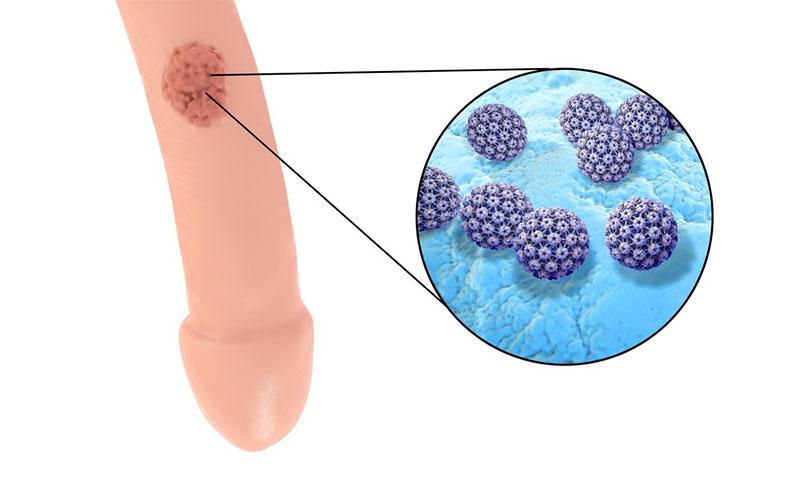 Diagnosi HPV-nell'uomo - Centro HPV - Casa di Cura Villa Mafalda Roma